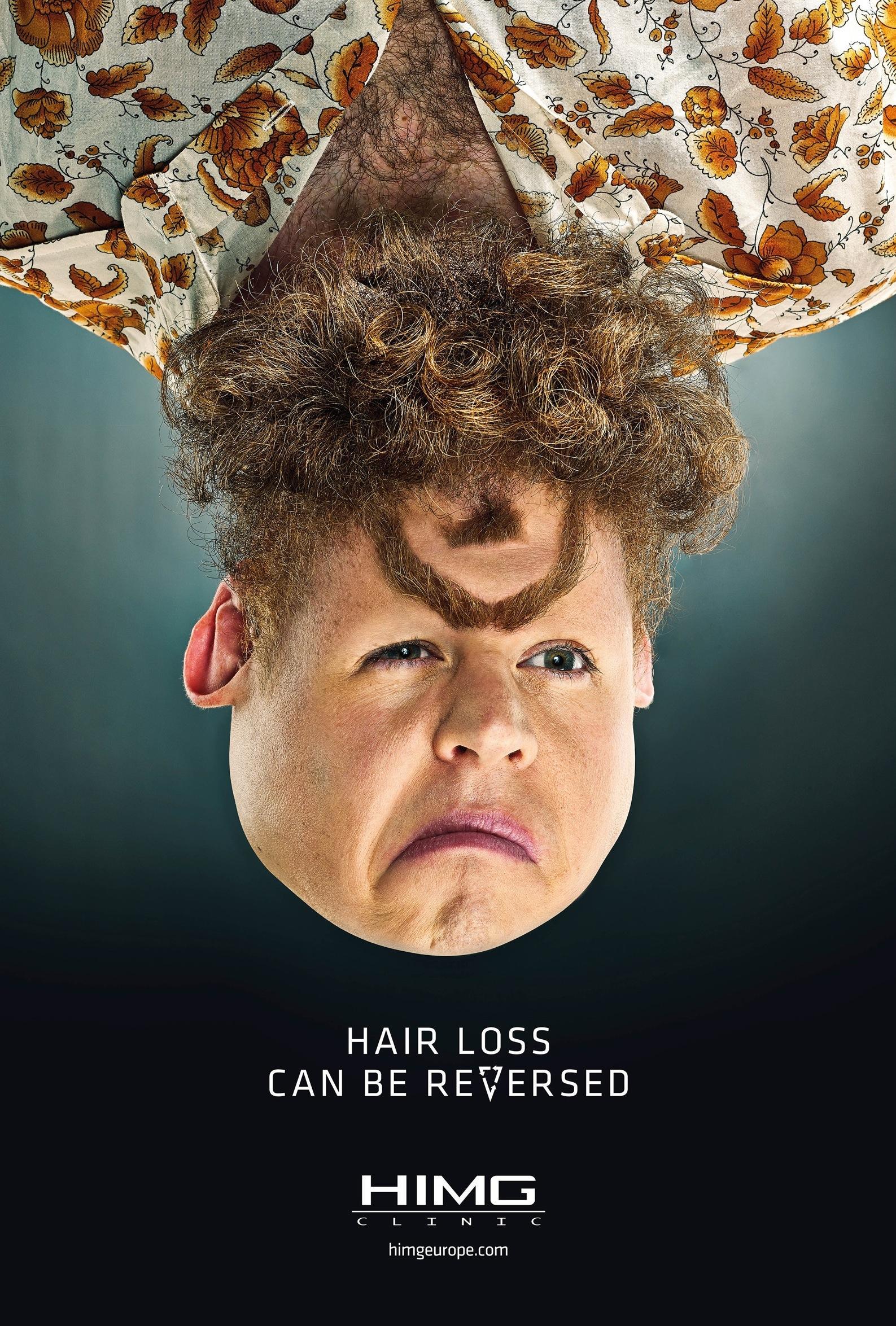 imagem hair loss